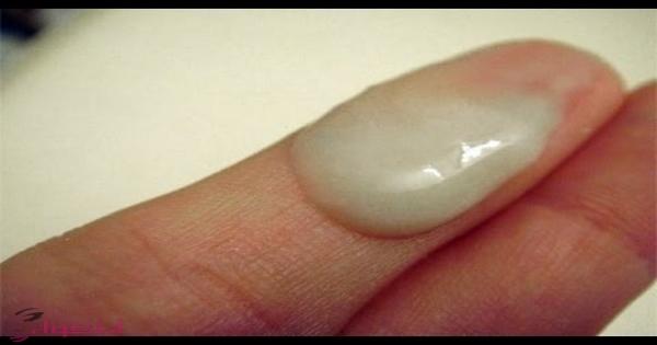افرازات صفراء قبل الدورة من علامات الحمل